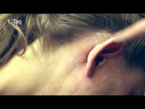 Die Rezensionen über die Behandlung der Schuppenflechte vom Essig