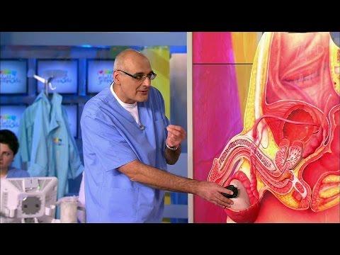Видео удаление рака простаты