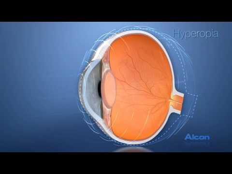 A látás vizelettel történő kezelése