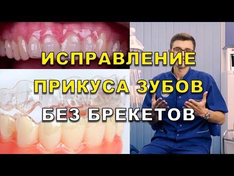 Неправильний прикус зубів ціна виправлення в Києві ЛюміДент 40b7efac13bae