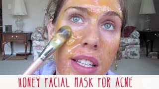 Homemade Honey Facial Mask For Acne | Cassandra Bankson