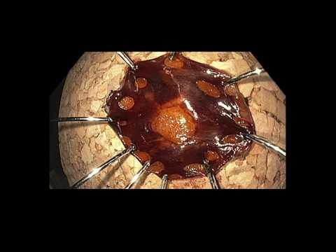 Papilloma virus collo