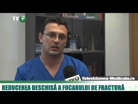 Tratamentul bolii articulațiilor cotului