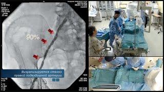 Стентирование подвздошной артерии