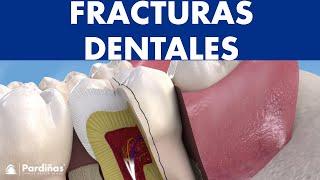 Fracturas dentales y fisuras - ¿Qué tipos hay y cómo se tratan? ©