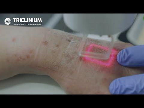 Pigmentacja skóry u kobiet przyczyn