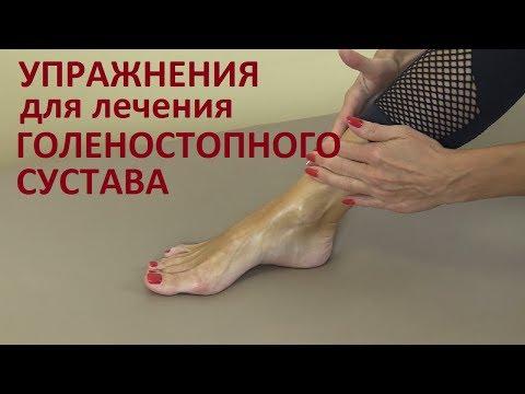 Гомеопатические средства лечения артроза