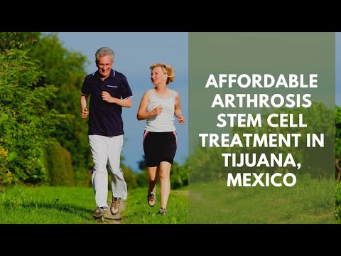 Affordable-Arthrosis-Stem-Cell-Treatment-in-Tijuana-Mexico