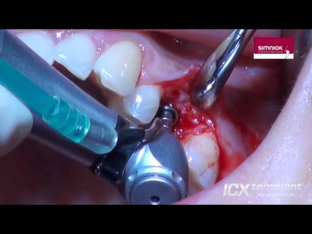Einzelzahnversorgung im Oberkiefer. Kondensation des Kieferknochens / Bonecondensing