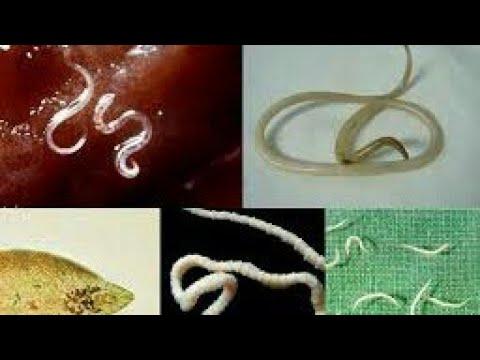 Unguente de zinc pentru viermi și viermi