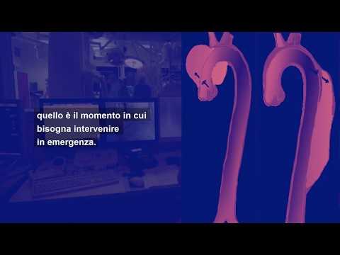 Curarsi a ISMETT: i programmi di cardiochirurgia
