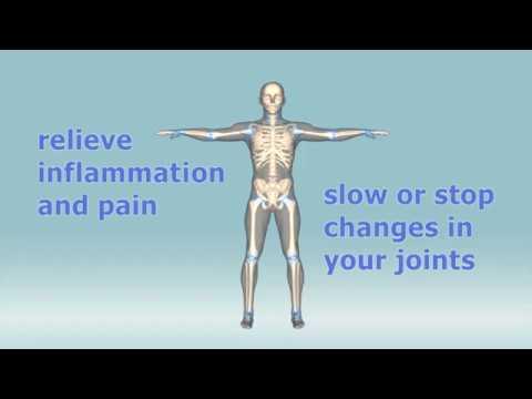 , title : 'What are the treatments for rheumatoid arthritis?'
