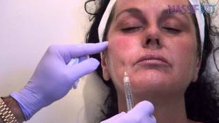 How To Use Blunt Cannula for Facial Fillers | Dr. Paul Nassif