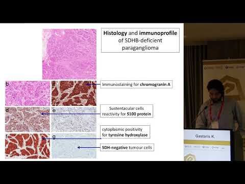 Gastaris Kostas - Metastatic pheochromocytoma and paraganglioma (case)