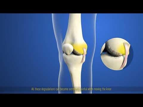 Cum se poate vindeca inflamația în articulațiile picioarelor