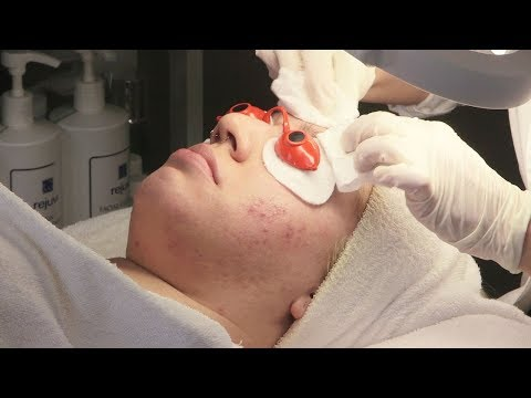 Banana facial mask pagkatapos ng 50 taon