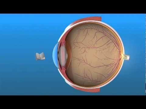 Vizin gyógyszer a látásra
