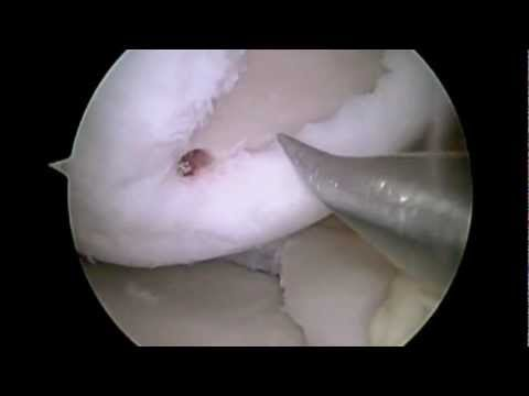 Arthroscopic Microfracture Of Lateral Femoral Condyle