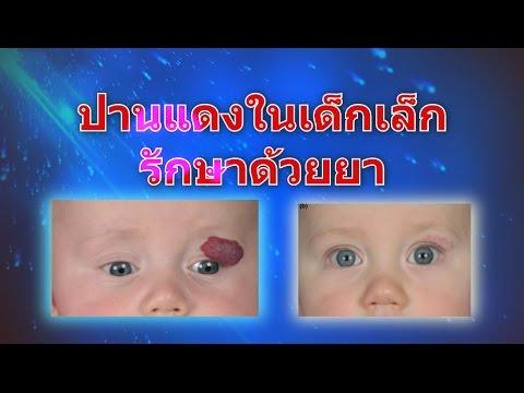 จังหวะ thrombophlebitis