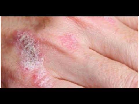 Eczema su mani e un trattamento di faccia