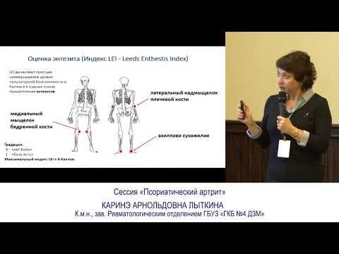 04 biocad Псориатический артрит
