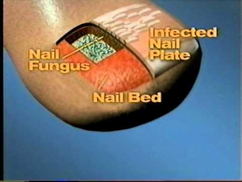 Fungus toenails sa kung ano ang doktor upang tugunan