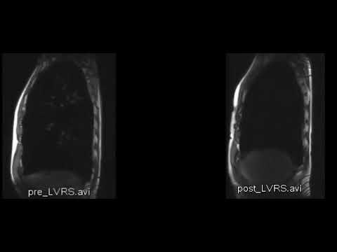 Mal di schiena nella regione lombare sul lato sinistro che curare