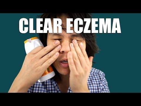 Eczemi di fotografia monetovidny