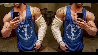 Triceps Tendon Rupture - Everything You Need To Know - Dr
