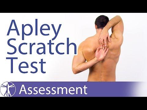 Sintomi di osteoporosi spinale e forum trattamento