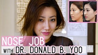 Asian Nose Job with the Asian Rhinoplasty Specialist - Dr. Donald B. Yoo, M.D.