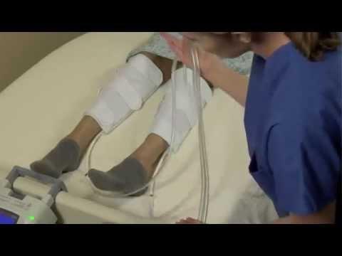 Thrombophlebitis แตงโม