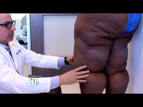 Pierderea în greutate hiv pozitivă