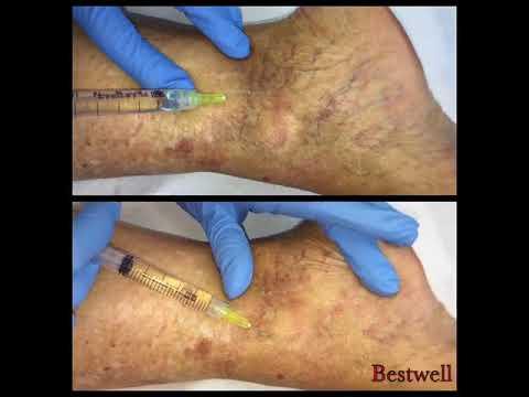 Dolorante dolore alla gamba inferiore della schiena e sinistra