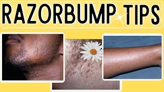 How to Get rid of Razor Bumps| Ingrown hairs