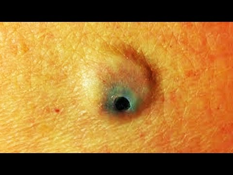 Big Blackhead Close-Up