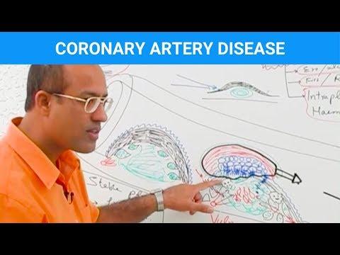Coronary Artery Disease – Ischemic Heart Disease – Angina