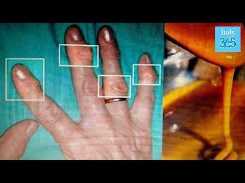 Lussazioni della articolazione del polso