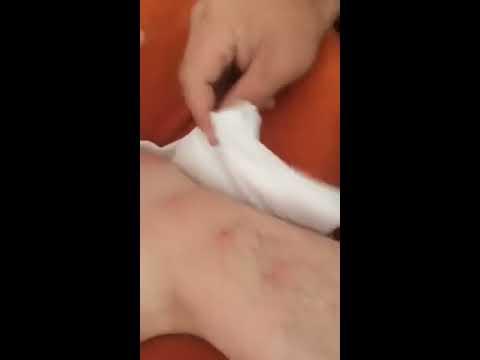 Si bander les pieds à la varicosité