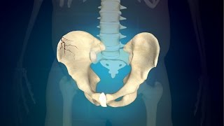 3 Simple Exercises for Pelvic Fracture to Regain Regular Function