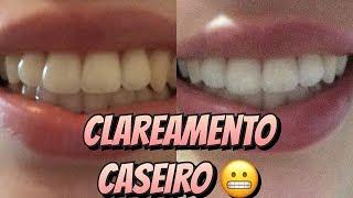 Descargar Mp3 De Clareamento De Dente Com Limao E Bicarbonato Gratis