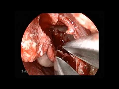 Intraductal papillomatosis treatment