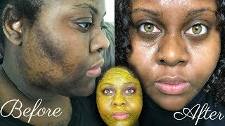 5 DAY TURMERIC FACE MASK CLEARED MY HYPERPIGMENTATION (IM SHOOK)