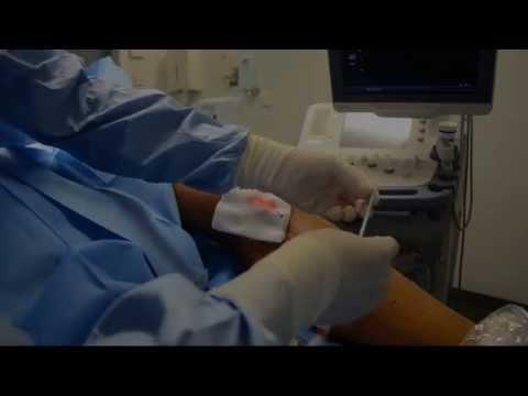 La thrombose du noeud hémorroïdaire à la grossesse les rappels