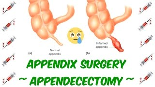 Actual Footage - Appendix Removal Surgery - Appendecectomy