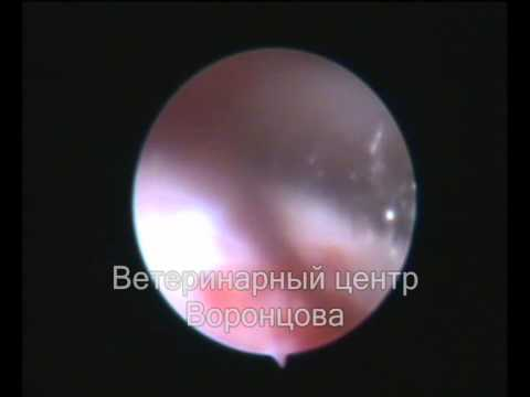 Tosse e petto osteochondrosis sintomi e trattamento