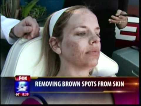 Kaysa sa paggamot sa facial pigmented spot matapos acne sa