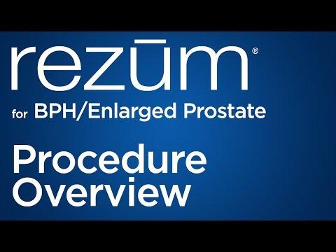 Uzi zeigt eine Entzündung der Prostata