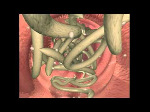 Gastric cancer johns hopkins