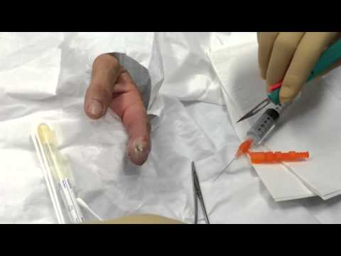 Video halamang-singaw paggamot kuko daliri sa paa